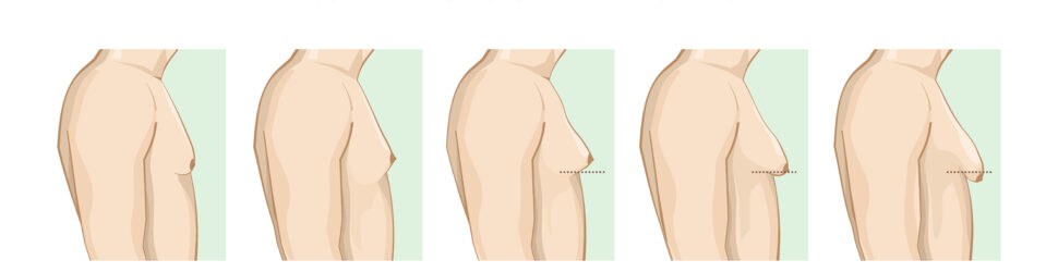 Classification,Of,Gynecomastia.,Enlargement,Of,The,Male,Breast